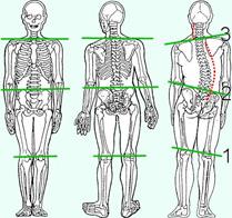 podologie, aandoening beenlengteverschil