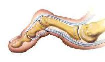 podologie - aandoening van de tenen, hamertenen