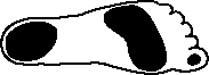 podologie, holvoeten (Pes Cavus)