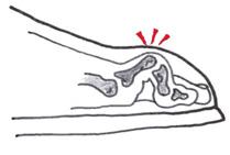 podologie, aandoening scheefstand van de tenen, klauwtenen