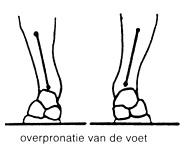 podologie, aandoening gangpatroon, overpronatie van de voet