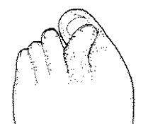 podologie, aandoening scheefstand van de tenen, overrijdende tenen